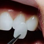 faccette-dentali-Studio-Benzi