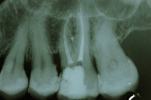 endodonzia-StudioBenzi